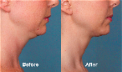 Kybella for Chin side view