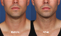 Kybella dissolves the fat and contract the fullness under the chin