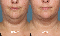 Kybella therapy for double chin